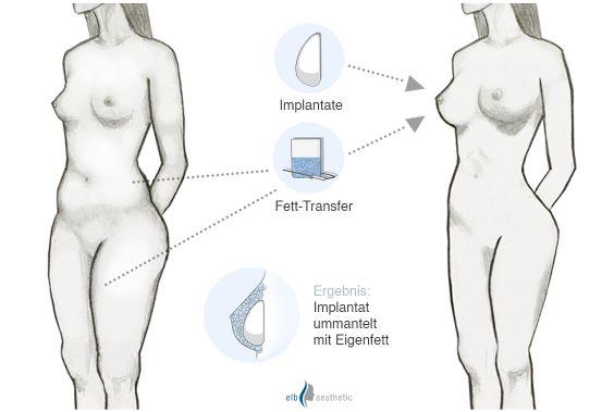 Brust silikon erfahrungen mit stillen Brustvergrösserung mit